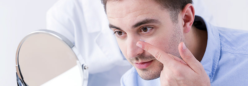 uso-y-manejo-de-lentes-de-contacto-blandas