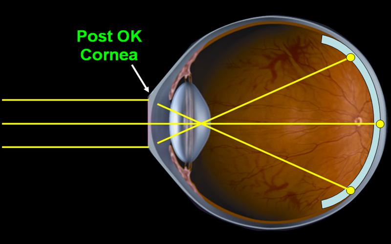 enfoque con lentes Orto-K